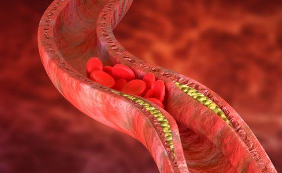 Ateroskleroza je suženje bilo koje arterije formiranjem pločice – ateroma uzrokovano: pušenjem, dijabetesom, hipertenzijom, hiperlipidemijom, fizičkom neaktivnošću, nasleđem.