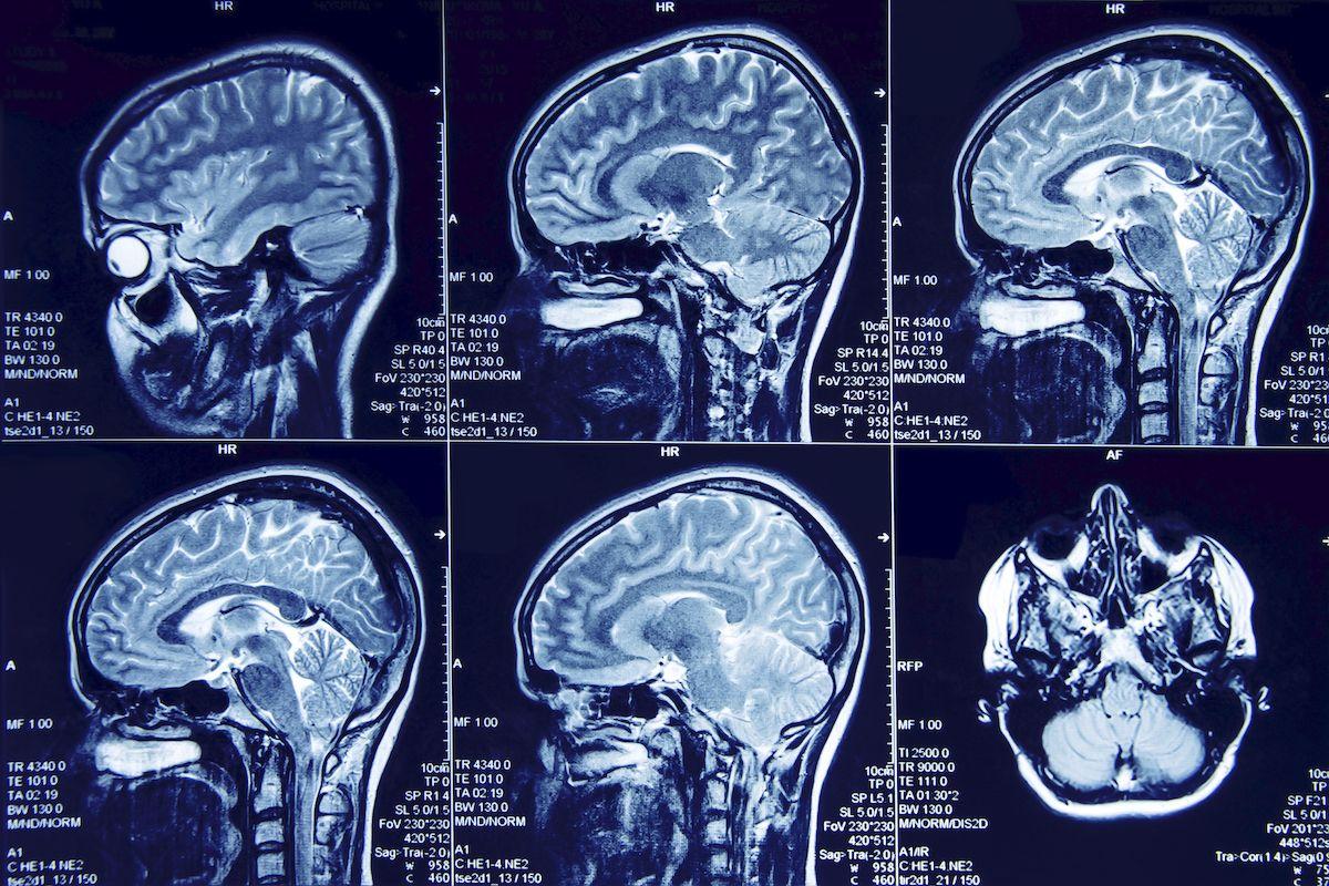 Magnetna rezonanca je neinvazivna i precizna dijagnostička metoda, koja daje konkretnu sliku o zdravlju pojedinih organa, organskih sistema, ali i o stanju čitavog organizma. Bezbolna je i potpuno neškodljiva za pacijente, pa se pregled može ponavljati više puta.Na osnovu rezultata određuje se dalji tok lečenja i najefikasnija terapiji.