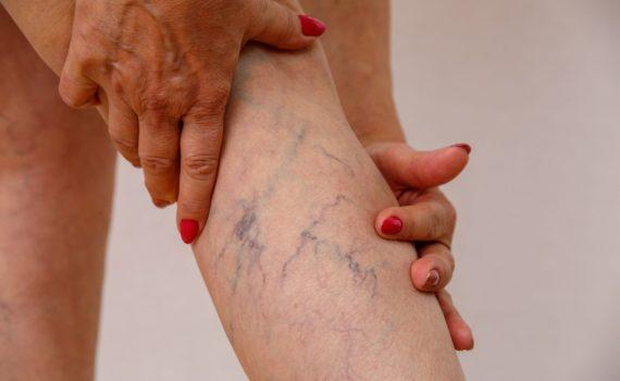 Varikozne (proširene) vene su veće širine od normalnih, oslabljenih zalistaka što je uzrokovano: nasleđem, gojaznošću, dugim stajanjem, trudnoćom itd. Najčešće stradaju vene nogu.
