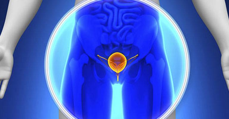 Karcinom prostate je maligni tumor žlezdanog tkiva prostate, koji daje slične simptome kao i benigna hiperplazija prostate. Pravilna dijagnoza je neophodna obzirom na različit ishod ovih bolesti.