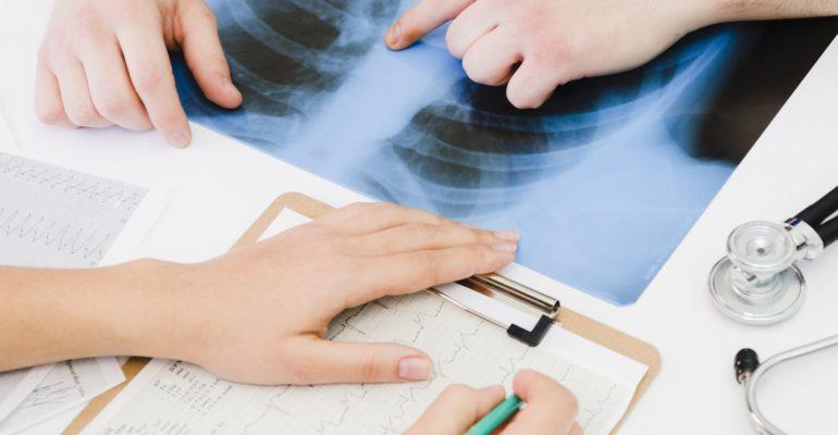 Karcinom pluća je nekontrolisani ubica stanovništva Srbije. Karcinom pluća je podmukla bolest. Kada se pojave tegobe zbog karcinoma pluća, obično se tada već radi o lakalno uznapredovaloj bolesti ili je karcinom dao udaljene metastaze, kada su i mogućnosti lečenja vrlo ograničene.