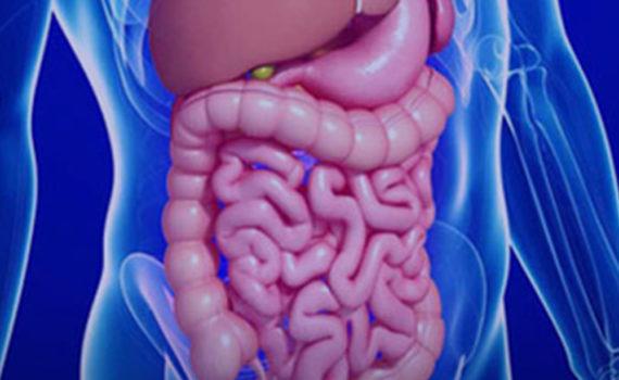 Karcinom creva je maligni poremećaj zida creva. Karcinomi creva (posebno debelog creva) su u porastu i zauzimaju sve značajnije mesto u oboljevanju i umiranju savremenog čoveka.