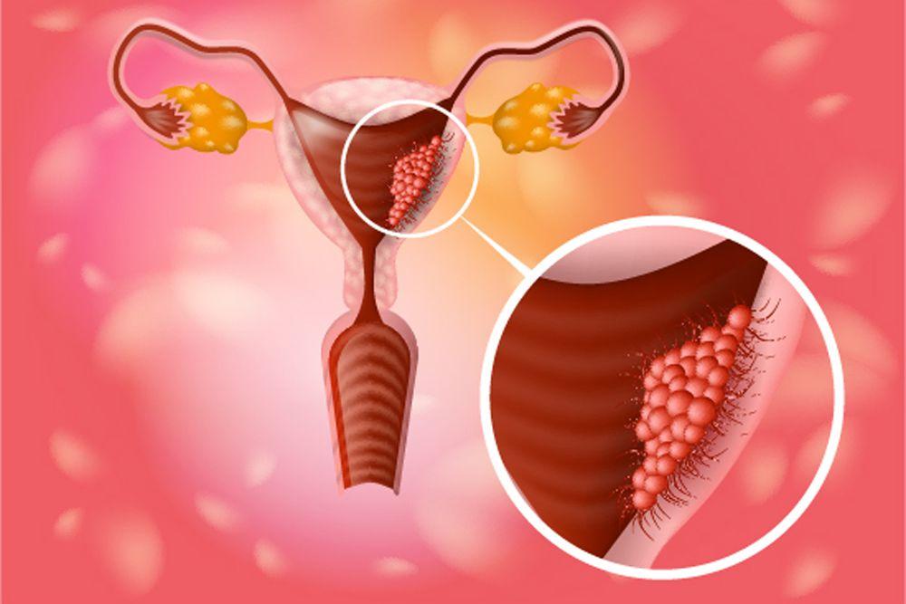 Zloćudno oboljenje grlića materice je izazvano visokoonkogenim tipovima humanog papiloma virusa, uz prisustvo brojnih kofaktora. U ranoj fazi bolest može biti potpuno izlečiva.