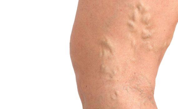 Venska tromboza je pojava tromba (ugruška) u površnoj ili dubokoj veni.