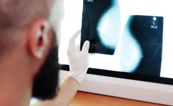 Mamografija je bezbolna, RTG metoda, za ispitivanje dojki. Prvu mamograifju treba uraditi oko 40. godine života, a kasnije po preporuci lekara.